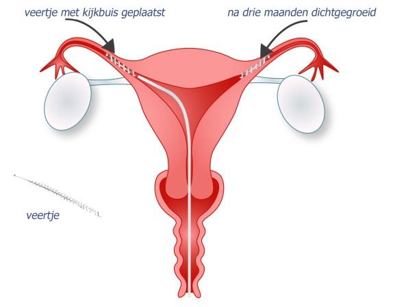 hormonen bij vrouwen
